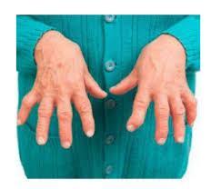 Artrovex opiniones - foro, comentarios, efectos secundarios?